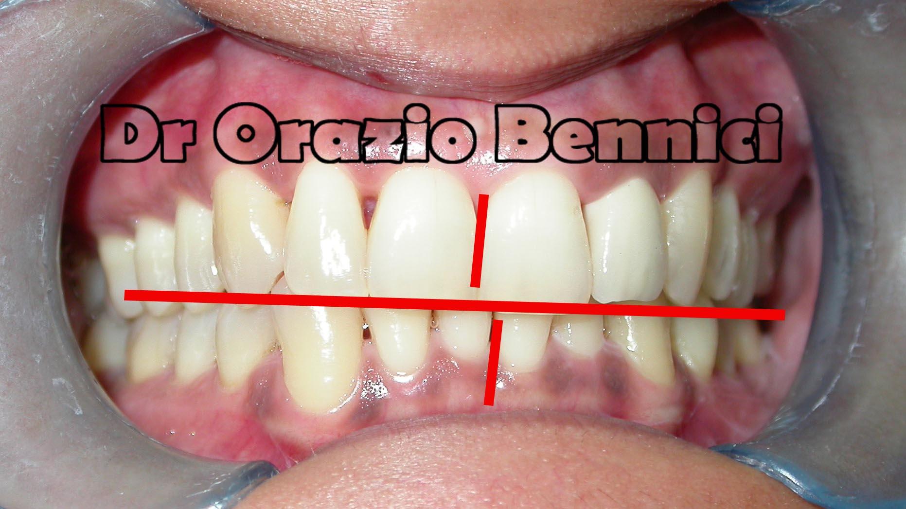 Trattamento Damon Mx - paziente affetto da DTM. Dr Orazio Bennici