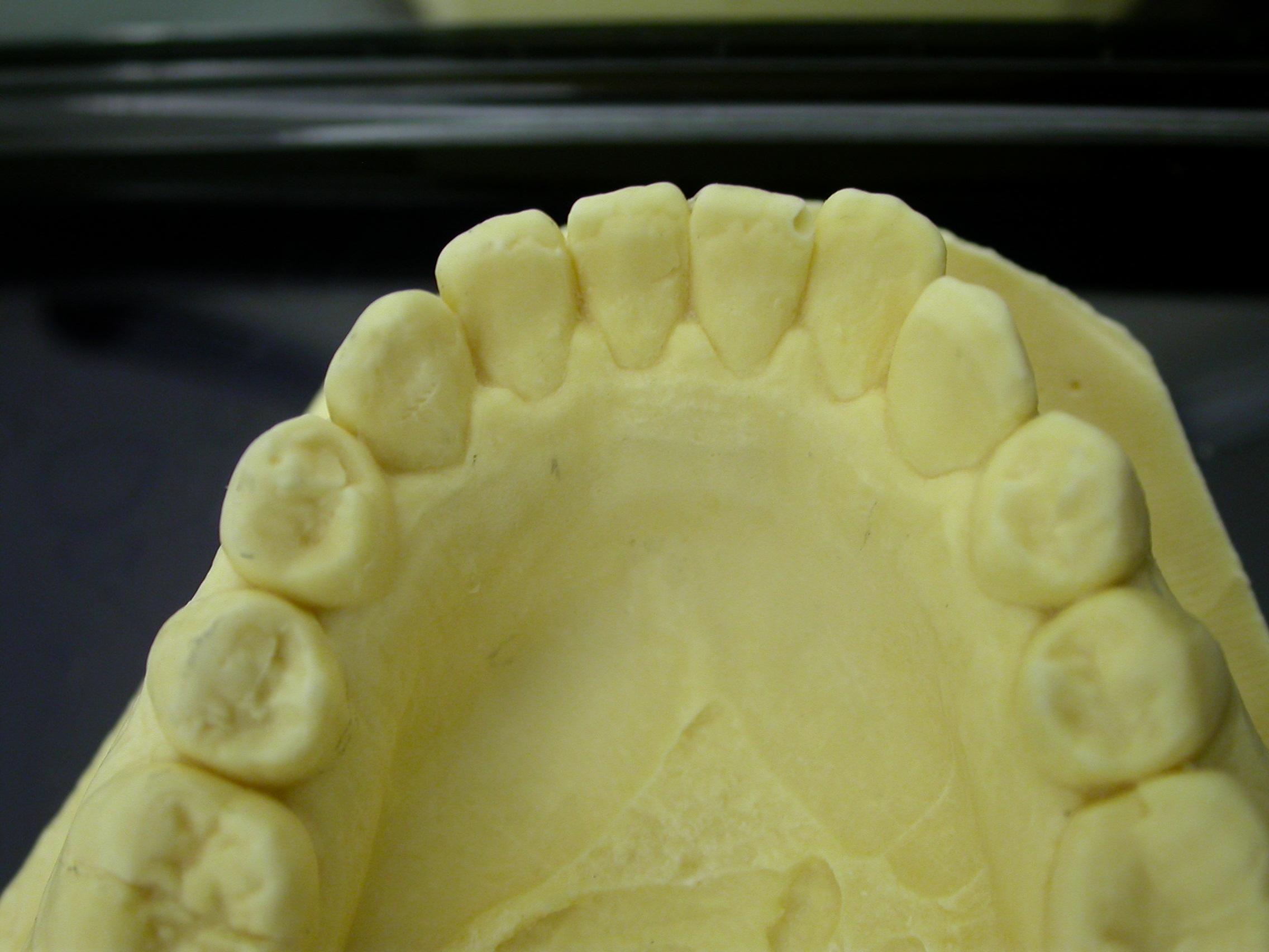 Ortodonzia linguale social six inferiore Dr Orazio Bennici