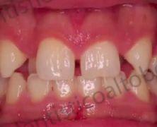 Caso clinico - Grave affollamento dentale in paziente adulto