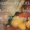 Piezosurgery flapless complicated extraction of ankylosed root