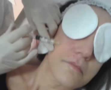 Biorivitalizzazione dei tessuti periorali
