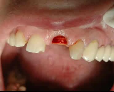 Facile e rapida sostituzione provvisoria di denti estratti