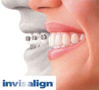 INVISALIGN - Ortodonzia ESTETICA