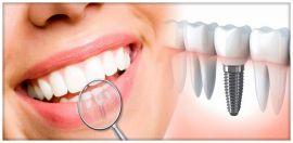 Impianto dentale di più elementi dentari persi