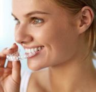 Ortodonzia: L'ultima generazione degli allineatori ortodontici