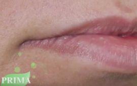 Medicina estetica: filler labbra con acido ialuronico