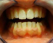 Ortodonzia Potente e risolutiva
