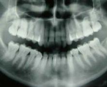 Riaprire spazi dove è stato estratto un dente precedentemente è possibile