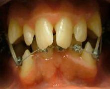 Ortodonzia potente e risolutiva nell'adulto