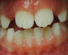 Deglutizione  atipica,  necessità  di  un  trattamento  intercettivo precoce
