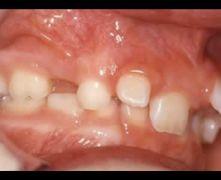 Denti  Volanti