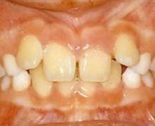la stabilità ortodontodontica è molto importante