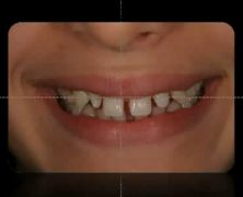 Global Orthodontic Treatment