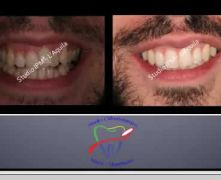 III Classi - Parte Quarta - Compenso Dentale con Estrazioni