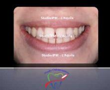 III Classi - Parte Terza - Compenso dentale senza estrazioni