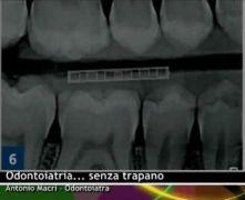 Odontoiatria... senza trapano