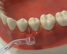 Video igiene orale