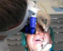 Estrazione del dente del giudizio in sedazione endovenosa
