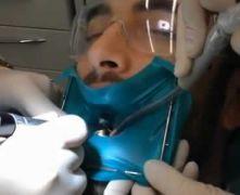 Intarsio su molare in paziente fobico, in sedazione endovenosa: 1° parte