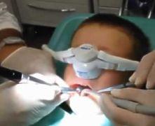 Paura del dentista: sedazione con protossido d'azoto per cure di denti decidui in bimbo di 5 anni
