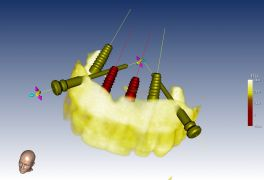 Implantologia computer guidata arcata superiore