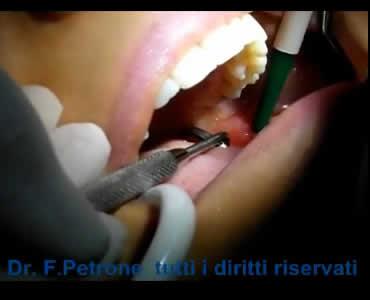 Estrazione Dente del Giudizio mini invasiva con Piezo Surgery
