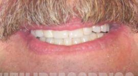 Casi Prima e Dopo - Implantologia Carico Immediato