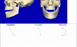 Blocco tempro mandibolare dx