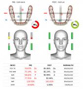 Analisi EMG dei contatti occlusali