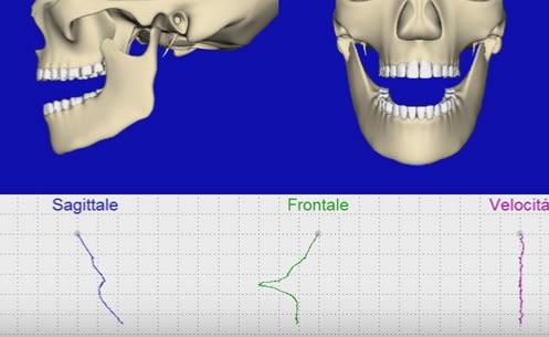 Click temporo mandibolare