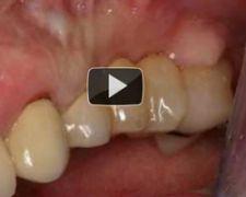 GBR Per recupero estetico e funzionale dopo insuccesso implantare