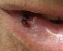 Angioma del labbro