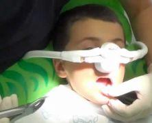 Estrazione di dente da latte