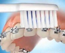 Apparecchio dei denti: istruzioni per l'uso