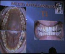 Corso di ortodonzia linguale: caso medio affollamento lingual orthodontic orazio bennici