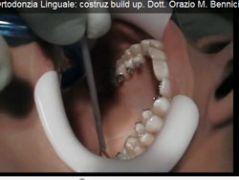 Corso di Ortodonzia Linguale: costruz build up. Dott. Orazio M. Bennici