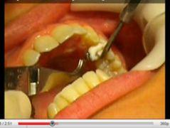 Ortodonzia Linguale: rimozione degli JIG. Lingual Orthodontic