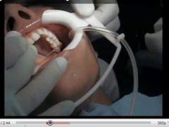Corso di ortodonzia linguale dott. Orazio M. Bennici Catania:  Bonding linguale