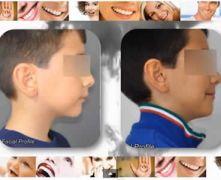 Ortodonzia. Casi clinici II Classe.