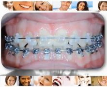 Ortodonzia. Casi Clinici III Classe.