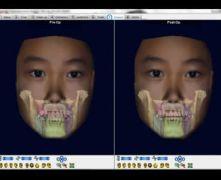 Simulazione trattamento biprotrusione dolphin surgery Dr. Orazio Bennici - CATANIA