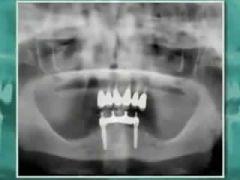 Implantologia Bologna